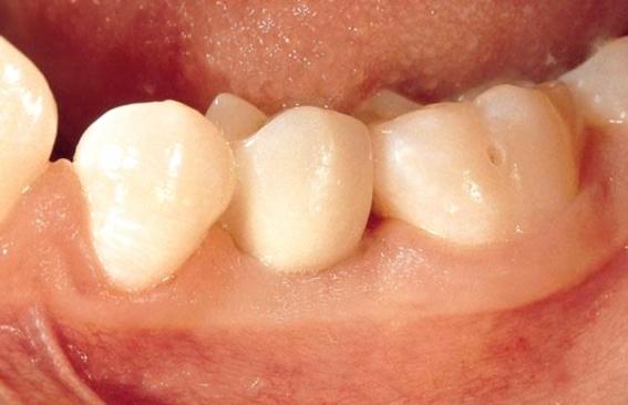 Straumann implanty warszawa2