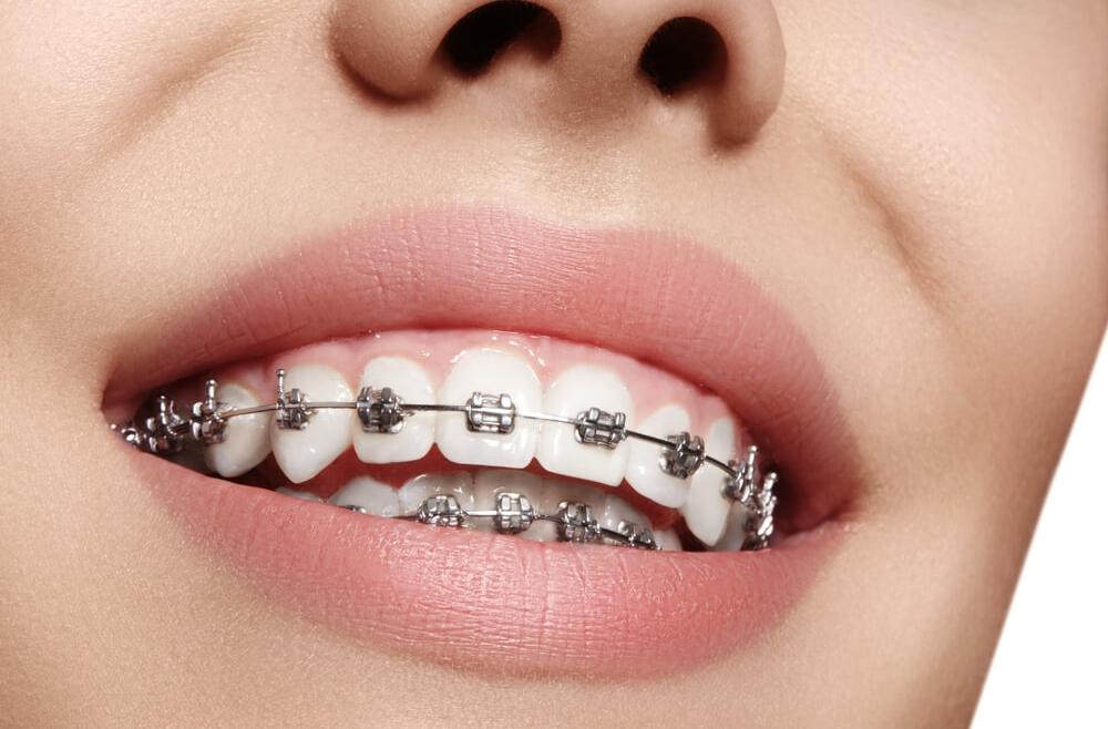 Jak dbać o higienę jamy ustnej podczas noszenia aparatu stałego?