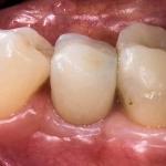 Implanty Friadent warszawa centrum
