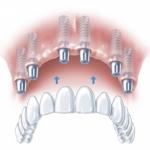 friadent implanty warszawa cenrtum