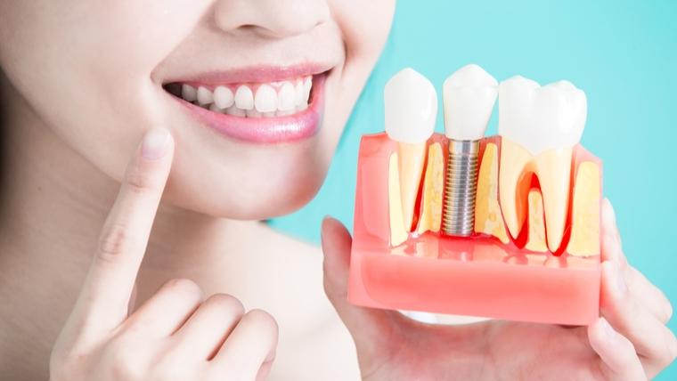 Czy istnieją przeciwskazania do wstawienia implantów?