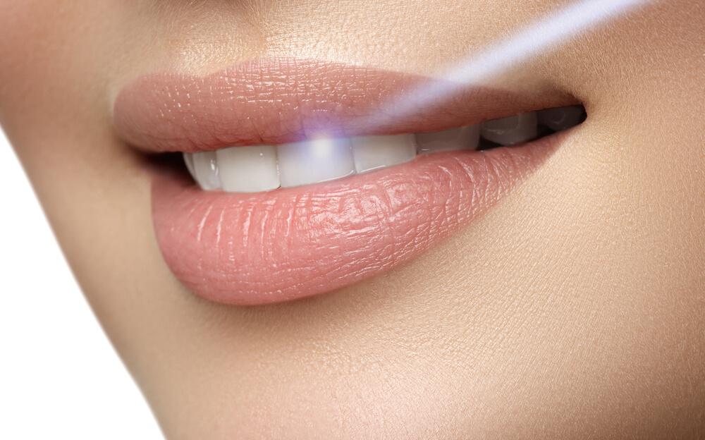 Wybielanie zębów z użyciem lasera diodowego