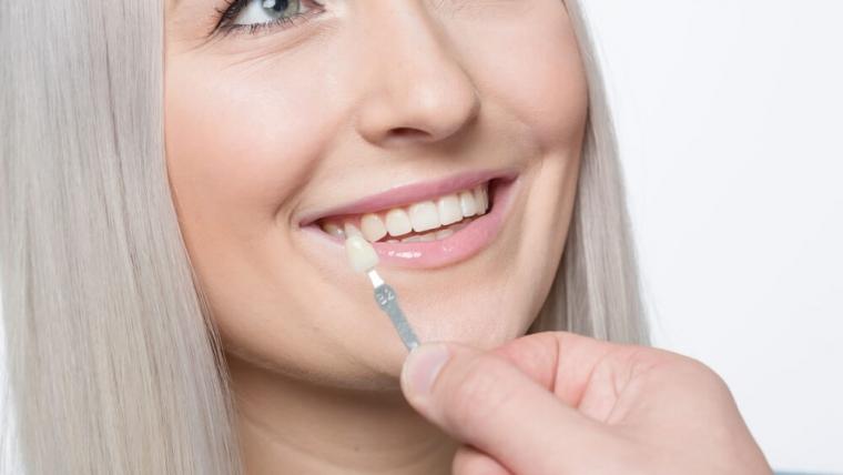 Licówka – sposób na korektę estetyczną zęba