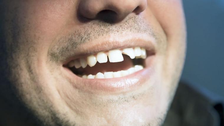 Złamany ząb — co dalej?