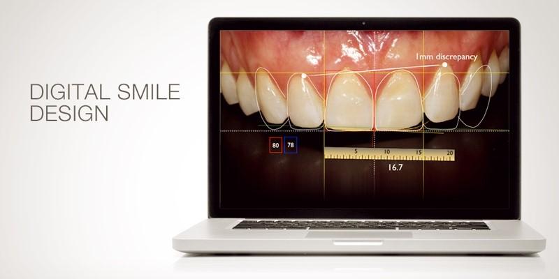 Digital Smile Design, czyli projektowanie zdrowego i pięknego uśmiechu