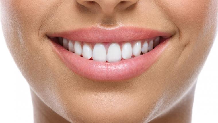 Licówki jako sposób na wybielanie zębów