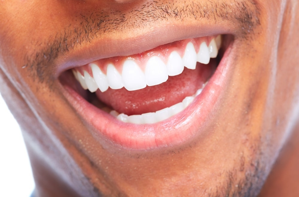 Wybielanie zębów – która metoda będzie najlepsza?