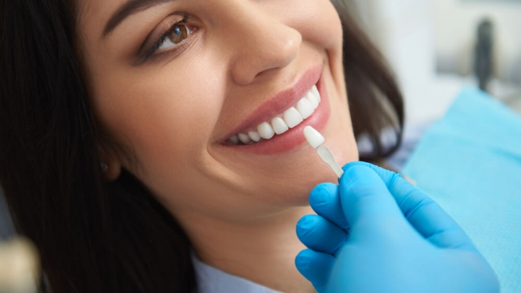 Dlaczego przed wykonaniem licówek niekiedy potrzebne jest przedłużenie korony zęba?